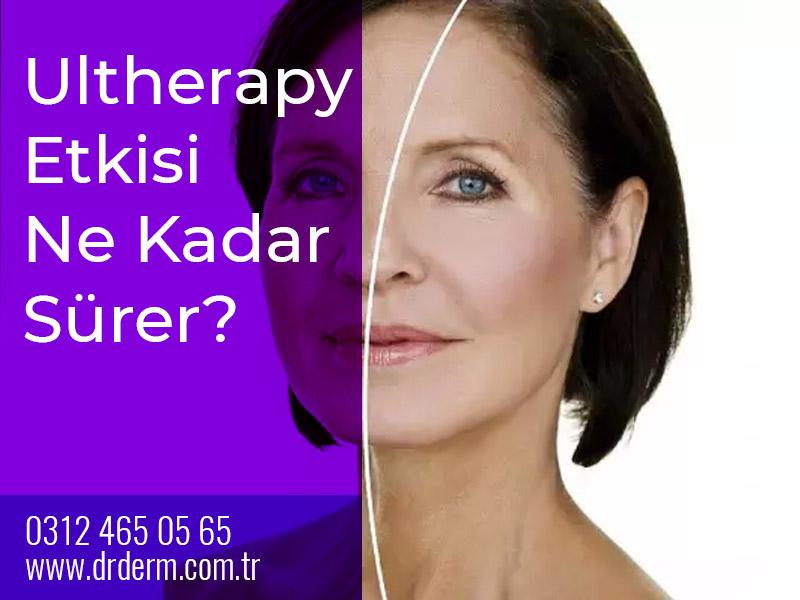 Ultherapy Etkisi Ne Kadar Sürer?