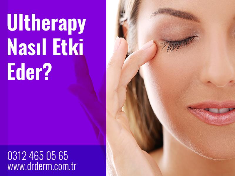 Ultherapy Nasıl Etki Eder?