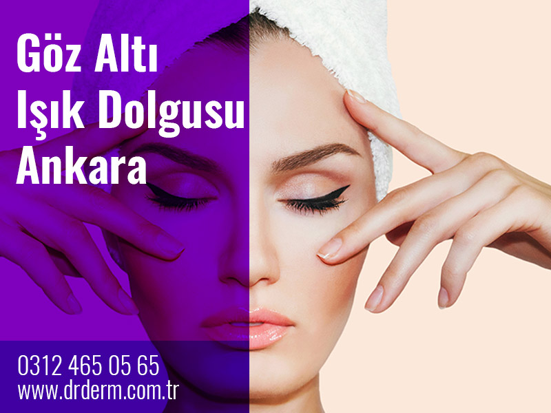 Göz Altı Işık Dolgusu Ankara