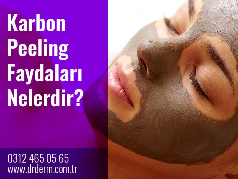 Karbon Peeling Faydaları Nelerdir?