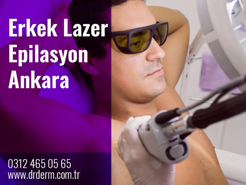 Erkek Lazer Epilasyon Ankara