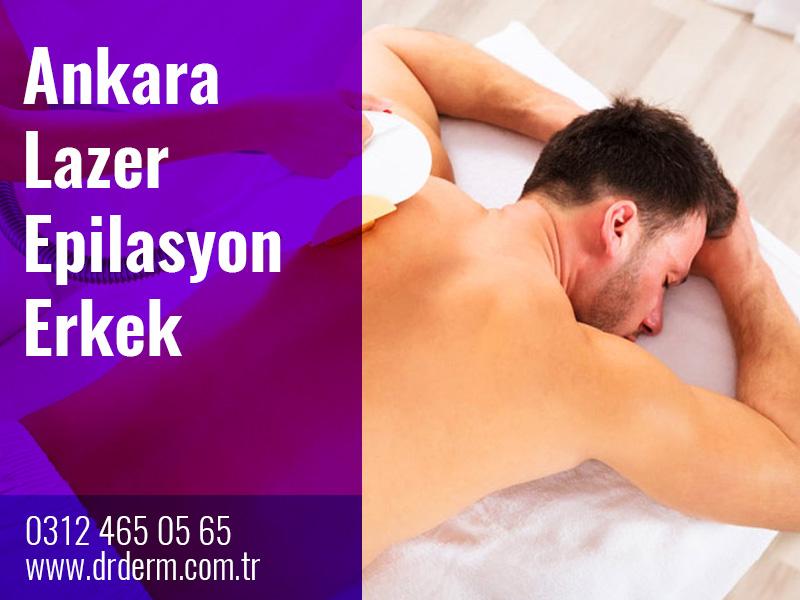 Ankara Lazer Epilasyon Erkek